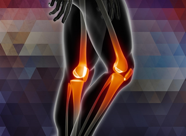 Rehabilitation of Workers with Knee Osteoarthritis